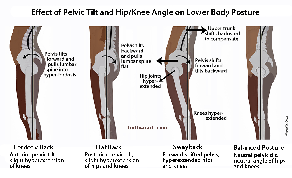 Help fix posture problems at Roche Injury Clinic Kilkenny