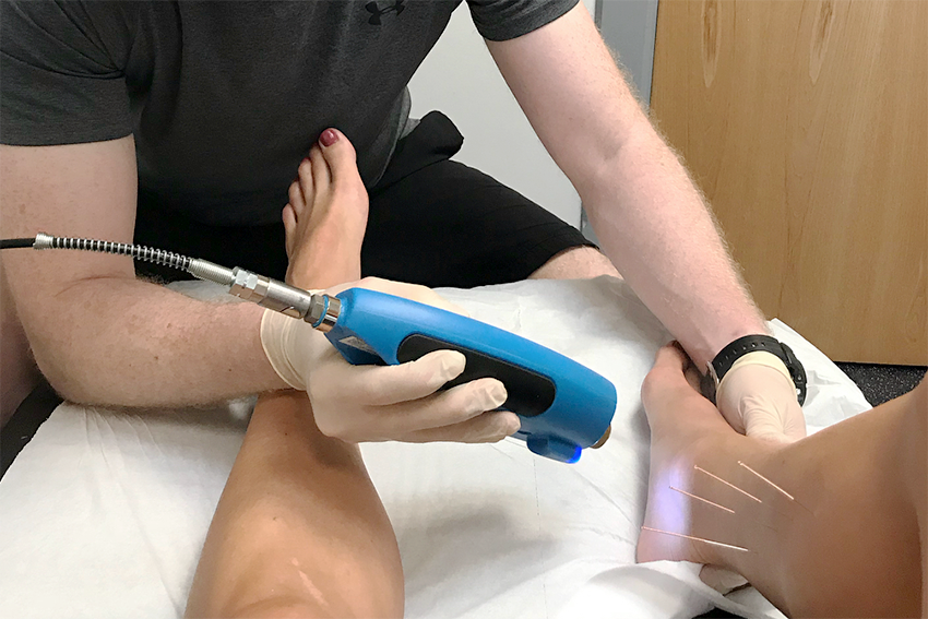 Cryotherapy at Roche Injury Clinic